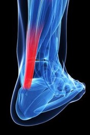 Achilles Tendon & Calf Pain