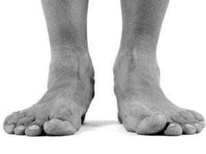 Flat Feet problems can be treated on the Sunshine Coast.