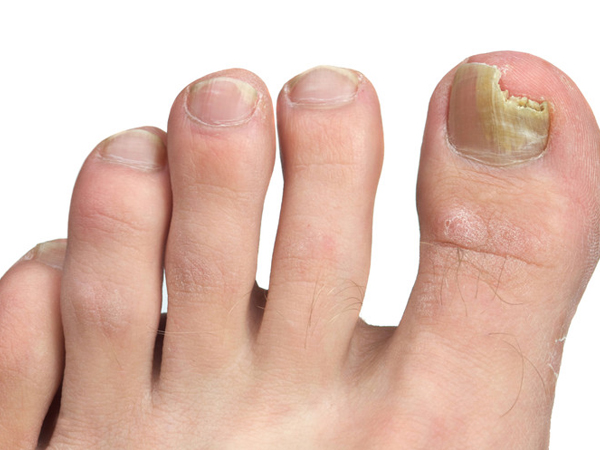 Fungal toes